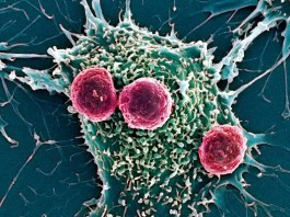 Breakthrough in Cannabis Curing Cancer Research